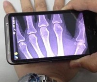 Descarga Xray Scan APK gratis